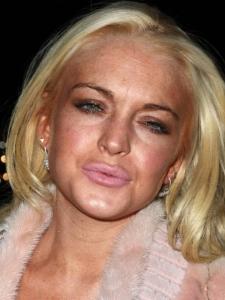 Lindsay-Lohan-lip-injections